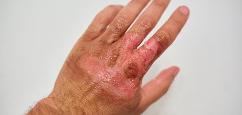 spálenina ruky